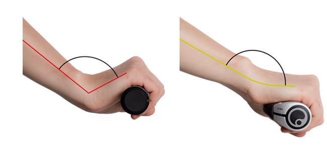 Handkorrektur durch Ergon Griffe