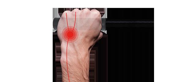 Schlechte Druckverteilung ohne Ergon GP Griff